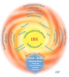 irritable bowel syndrome (ibs) – women's health network, Human body